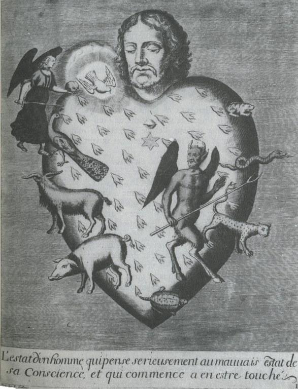 1794A